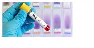"""Sağlık Bakanlığından """"zika virüsü"""" açıklaması"""
