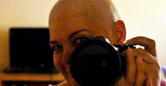 Kanseri Fotoğrafçılıkla Yendi